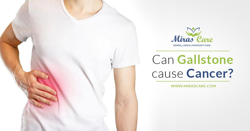 Can Gallstone cause Cancer